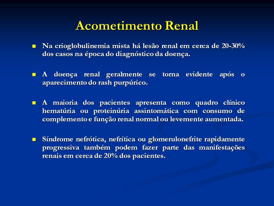 Acometimento Renal Na crioglobulinemia mista há lesão renal em cerca de 20-30% dos casos na época do diagnóstico da doença. Na crioglobulinemia mista