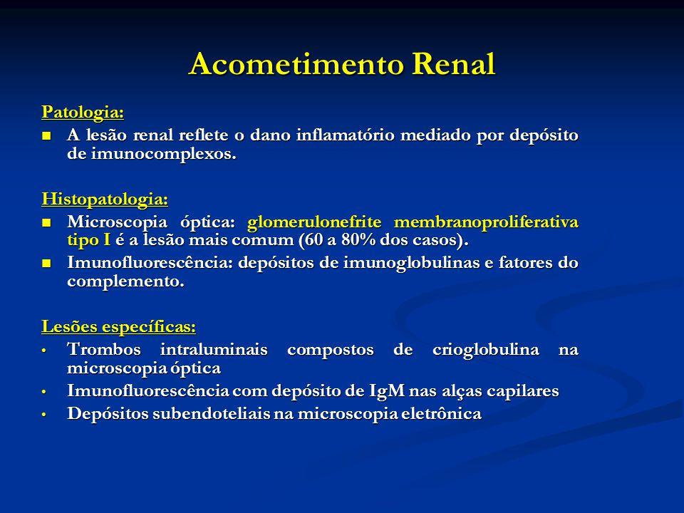 Acometimento Renal Patologia: A lesão renal reflete o dano inflamatório mediado por depósito de imunocomplexos. A lesão renal reflete o dano inflamató
