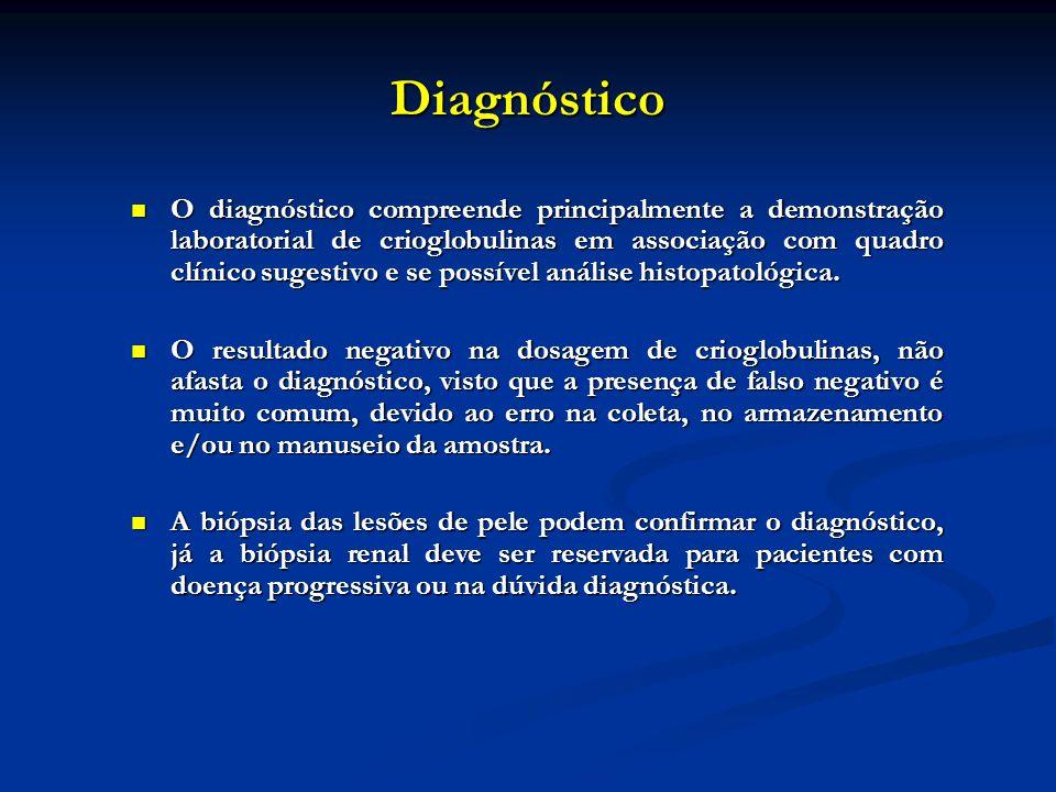 Diagnóstico O diagnóstico compreende principalmente a demonstração laboratorial de crioglobulinas em associação com quadro clínico sugestivo e se poss