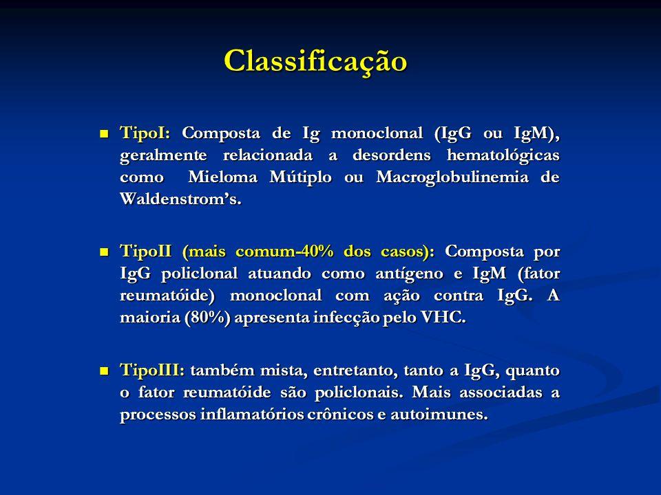 Classificação TipoI: Composta de Ig monoclonal (IgG ou IgM), geralmente relacionada a desordens hematológicas como Mieloma Mútiplo ou Macroglobulinemi