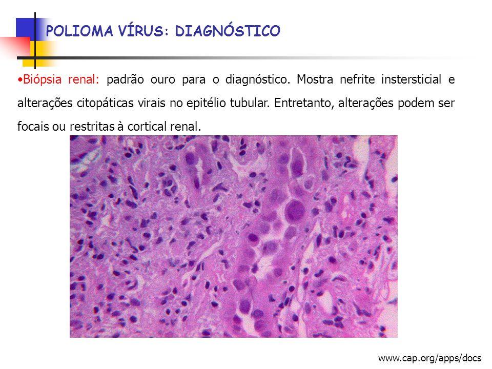 Biópsia renal: padrão ouro para o diagnóstico.