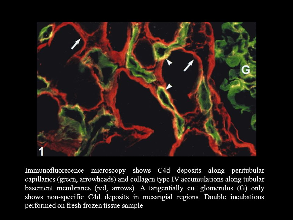 Immunofluorecence microscopy shows C4d deposits along peritubular capillaries (green, arrowheads) and collagen type IV accumulations along tubular bas