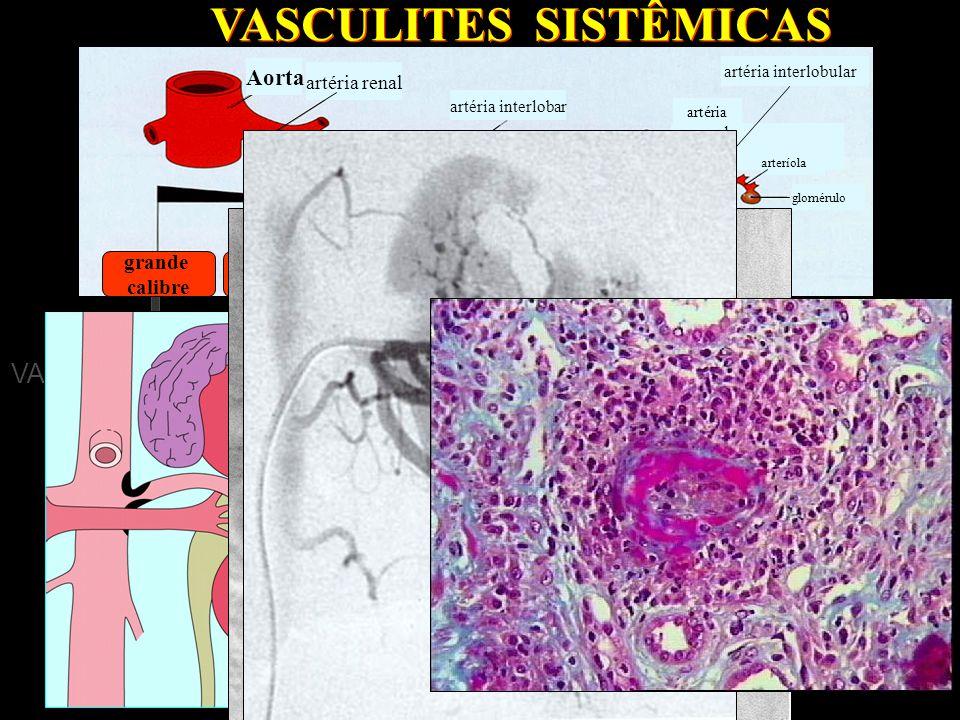 VASCULITE DE GRANDES VASOS  arterite temporal  arterite de Takayasu VASCULITE DE GRANDES VASOS  arterite temporal  arterite de Takayasu VASCULITES SISTÊMICAS VASCULITE DE VASOS de MÉDIO CALIBRE  poliarterite nodosa clássica  doença de Kawasaki VASCULITE DE VASOS de MÉDIO CALIBRE  poliarterite nodosa clássica  doença de Kawasaki VASCULITE DE PEQUENOS VASOS  Granulomatose de Wegener  Poliangeíte microscópica  Síndrome de Churg-Strauss  Púrpura de Henoch-Schoenlein  Vasculite da crioglobulinemia  Angeíte cutânea leucocitoclástica VASCULITE DE PEQUENOS VASOS  Granulomatose de Wegener  Poliangeíte microscópica  Síndrome de Churg-Strauss  Púrpura de Henoch-Schoenlein  Vasculite da crioglobulinemia  Angeíte cutânea leucocitoclástica artéria renal artéria interlobar glomérulo artéria interlobular Aorta grande calibre médio calibre pequeno calibre arteríola artéria arqueada