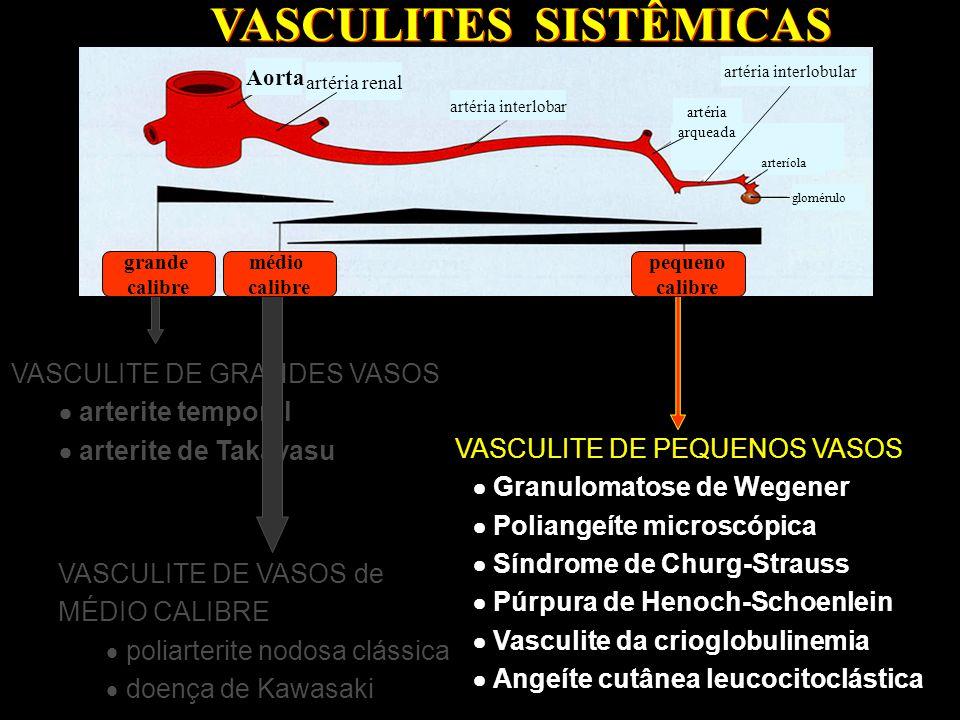 VASCULITE DE GRANDES VASOS  arterite temporal  arterite de Takayasu VASCULITE DE GRANDES VASOS  arterite temporal  arterite de Takayasu VASCULITES