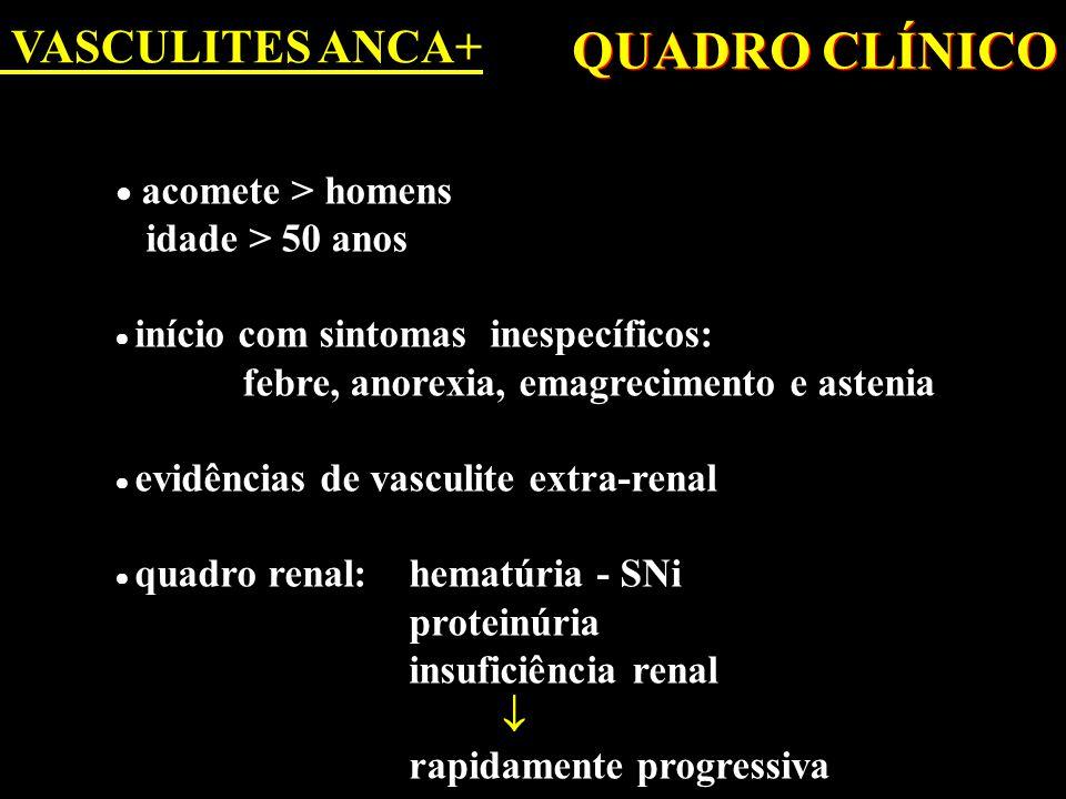 VASCULITES ANCA+ DIAGNÓSTICO  Quadro clínico  Biópsia renal: GN necrotizante crescêntica IF negativa (pauci-imune)  Proteína C reativa  ANCA  Complemento é normal  Quadro clínico  Biópsia renal: GN necrotizante crescêntica IF negativa (pauci-imune)  Proteína C reativa  ANCA  Complemento é normal