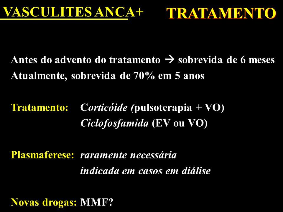 VASCULITES ANCA+ TRATAMENTO Antes do advento do tratamento  sobrevida de 6 meses Atualmente, sobrevida de 70% em 5 anos Tratamento: Corticóide (pulso