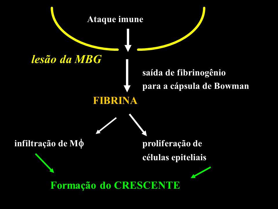 Ataque imune saída de fibrinogênio para a cápsula de Bowman FIBRINA infiltração de M   proliferação de células epiteliais Formação do CRESCENTE Ataq