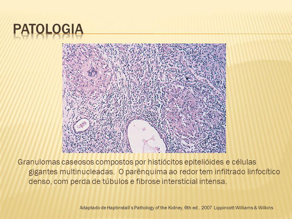  Tuberculose renal envolvendo a papila renal com necrose papilar associada.