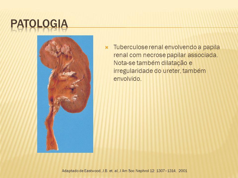  Formas disseminadas:  Geralmente as formas disseminadas de tuberculose são acompanhadas de sintomas sistêmicos exuberantes, os quais mascaram as manifestações renais.