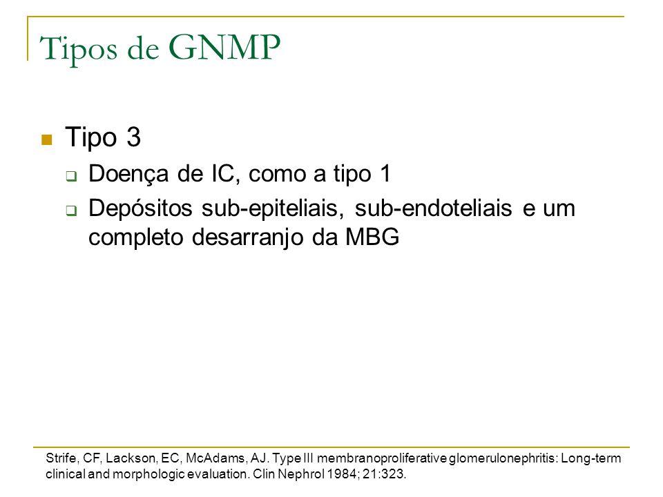 Tipos de GNMP Tipo 3  Doença de IC, como a tipo 1  Depósitos sub-epiteliais, sub-endoteliais e um completo desarranjo da MBG Strife, CF, Lackson, EC