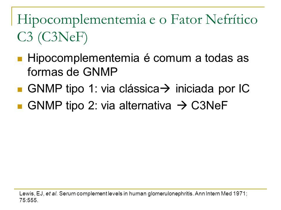 Hipocomplementemia e o Fator Nefrítico C3 (C3NeF) Hipocomplementemia é comum a todas as formas de GNMP GNMP tipo 1: via clássica  iniciada por IC GNM