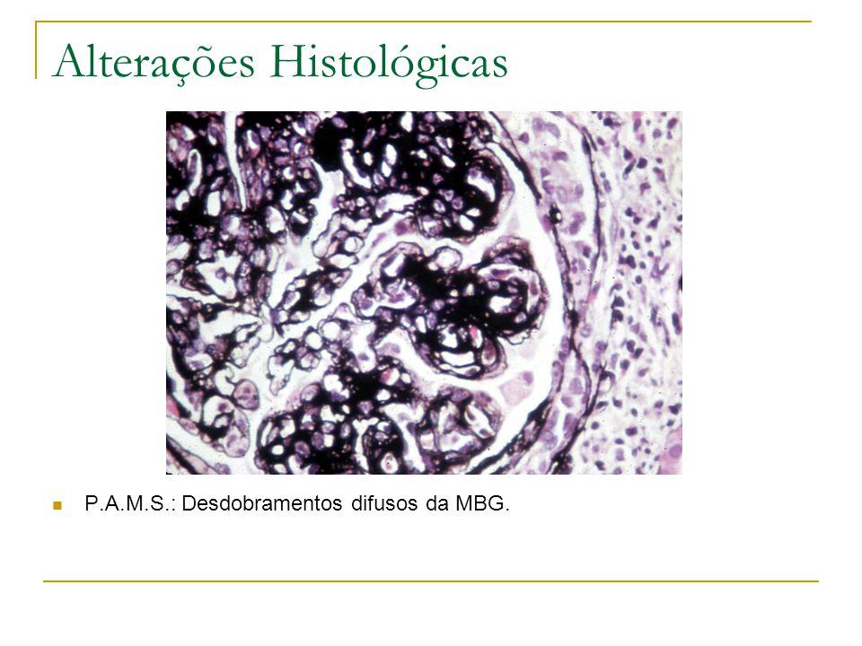 Alterações Histológicas P.A.M.S.: Desdobramentos difusos da MBG.