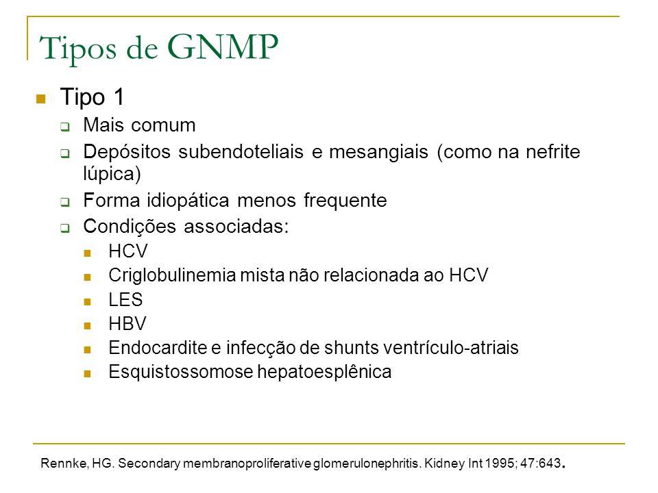 Tipos de GNMP Tipo 1  Mais comum  Depósitos subendoteliais e mesangiais (como na nefrite lúpica)  Forma idiopática menos frequente  Condições asso