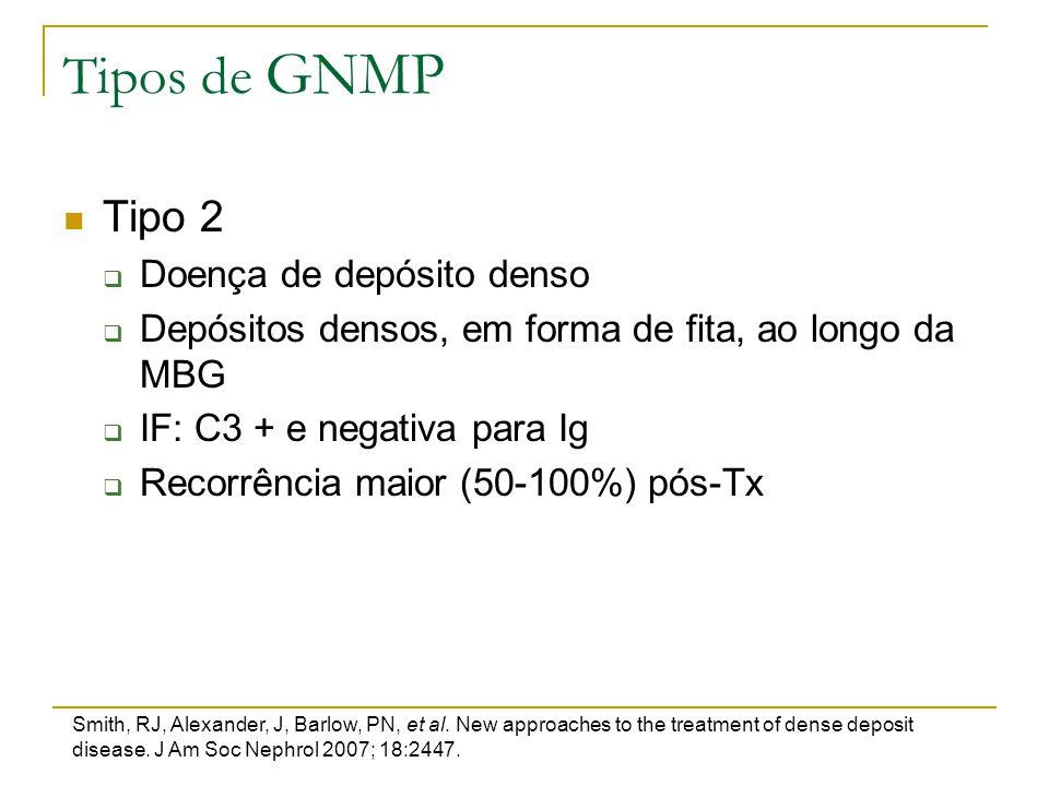 Tipos de GNMP Tipo 2  Doença de depósito denso  Depósitos densos, em forma de fita, ao longo da MBG  IF: C3 + e negativa para Ig  Recorrência maio