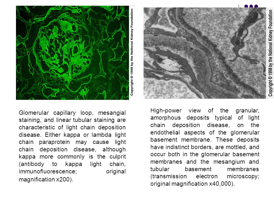 Glomerular capillary loop, mesangial staining, and linear tubular staining are characteristic of light chain deposition disease. Either kappa or lambd