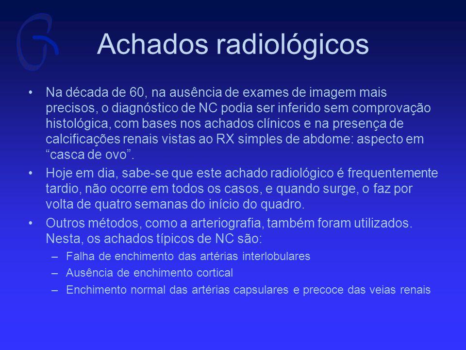 Achados radiológicos Na década de 60, na ausência de exames de imagem mais precisos, o diagnóstico de NC podia ser inferido sem comprovação histológica, com bases nos achados clínicos e na presença de calcificações renais vistas ao RX simples de abdome: aspecto em casca de ovo .
