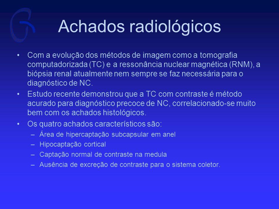 Achados radiológicos Com a evolução dos métodos de imagem como a tomografia computadorizada (TC) e a ressonância nuclear magnética (RNM), a biópsia renal atualmente nem sempre se faz necessária para o diagnóstico de NC.