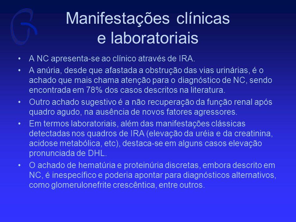 Manifestações clínicas e laboratoriais A NC apresenta-se ao clínico através de IRA.