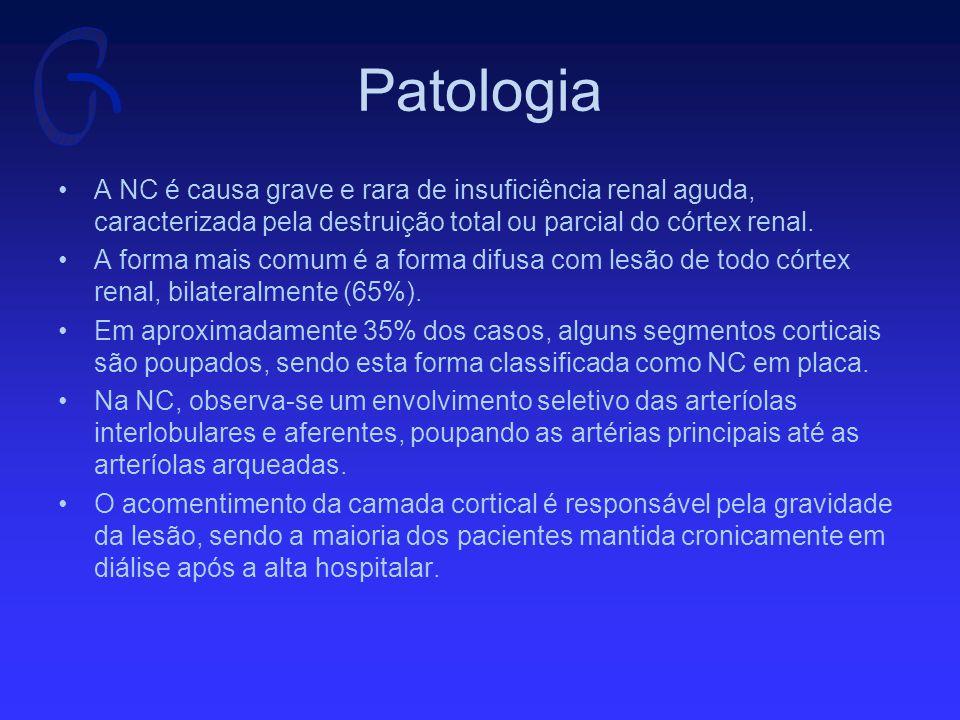 Patologia A biópsia renal nem sempre é possível, frequentemente pela gravidade do caso e pela coexistência de coagulopatia.