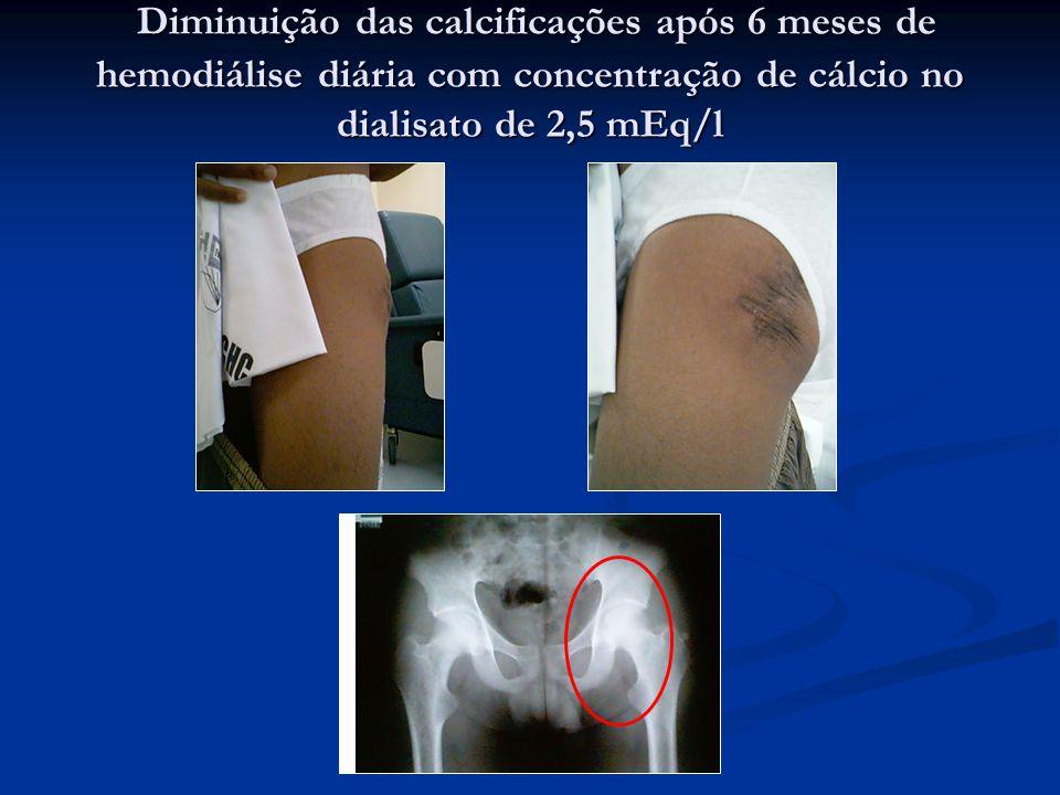 Diminuição das calcificações após 6 meses de hemodiálise diária com concentração de cálcio no dialisato de 2,5 mEq/l Diminuição das calcificações após