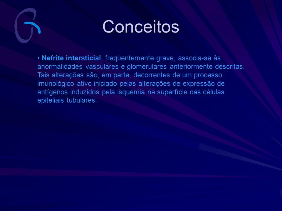 Conceitos Nefrite intersticial, freqüentemente grave, associa-se às anormalidades vasculares e glomerulares anteriormente descritas. Tais alterações s