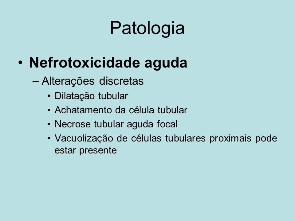 Patologia Nefrotoxicidade aguda –Alterações discretas Dilatação tubular Achatamento da célula tubular Necrose tubular aguda focal Vacuolização de célu