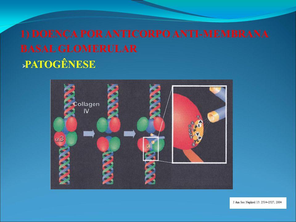 1) DOENÇA POR ANTICORPO ANTI-MEMBRANA BASAL GLOMERULAR  DIAGNÓSTICO: Quadro clínico compatível com GNRP associado a presença do Anticorpo anti- GBM detectado por radioimunoensaio.