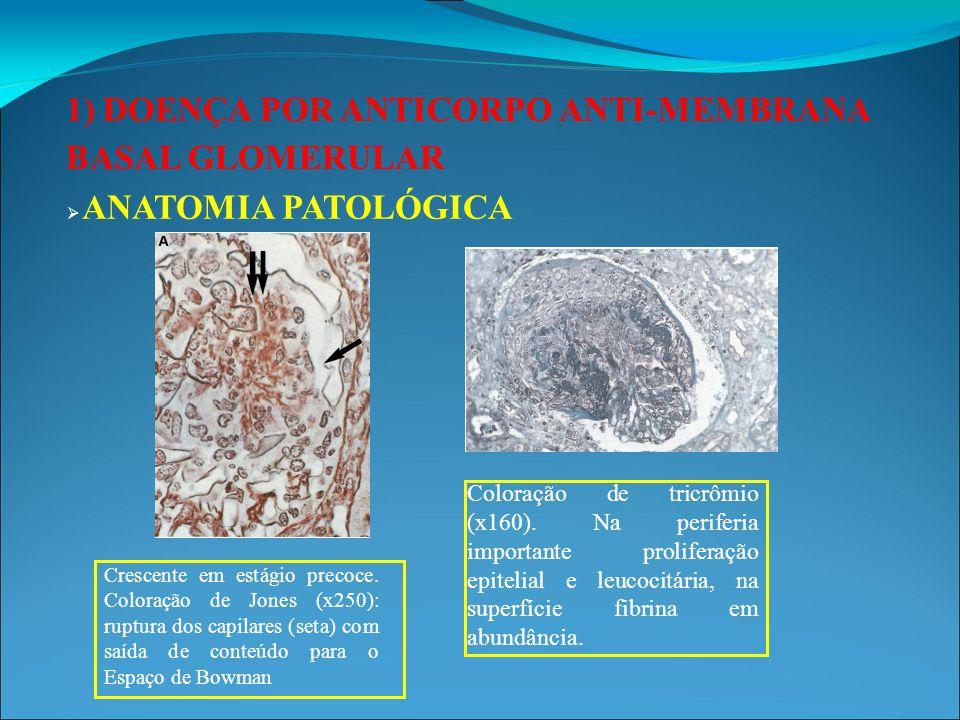 1) DOENÇA POR ANTICORPO ANTI-MEMBRANA BASAL GLOMERULAR Depósito de IgG com padrão linear  ANATOMIA PATOLÓGICA: Imunofluorescência