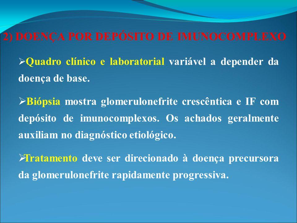 2) DOENÇA POR DEPÓSITO DE IMUNOCOMPLEXO Depósito de IgA mesangial na nefropatia por IgA