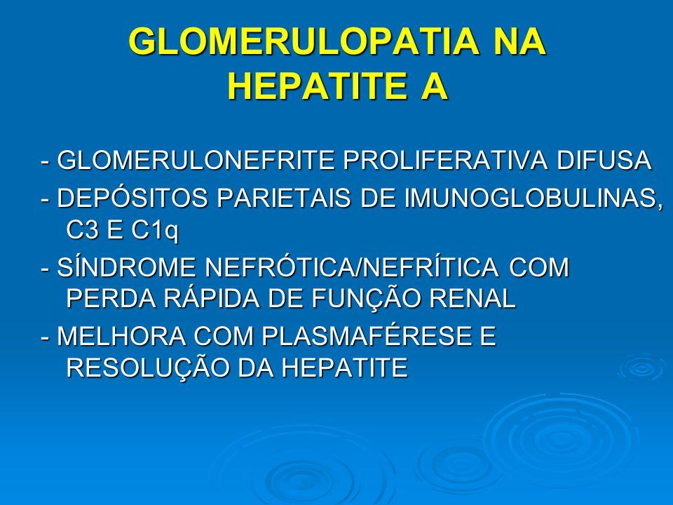 - GLOMERULONEFRITE PROLIFERATIVA DIFUSA - DEPÓSITOS PARIETAIS DE IMUNOGLOBULINAS, C3 E C1q - SÍNDROME NEFRÓTICA/NEFRÍTICA COM PERDA RÁPIDA DE FUNÇÃO R