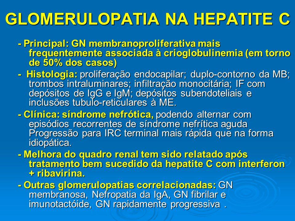 - Principal: GN membranoproliferativa mais frequentemente associada à crioglobulinemia (em torno de 50% dos casos) - Histologia: proliferação endocapi