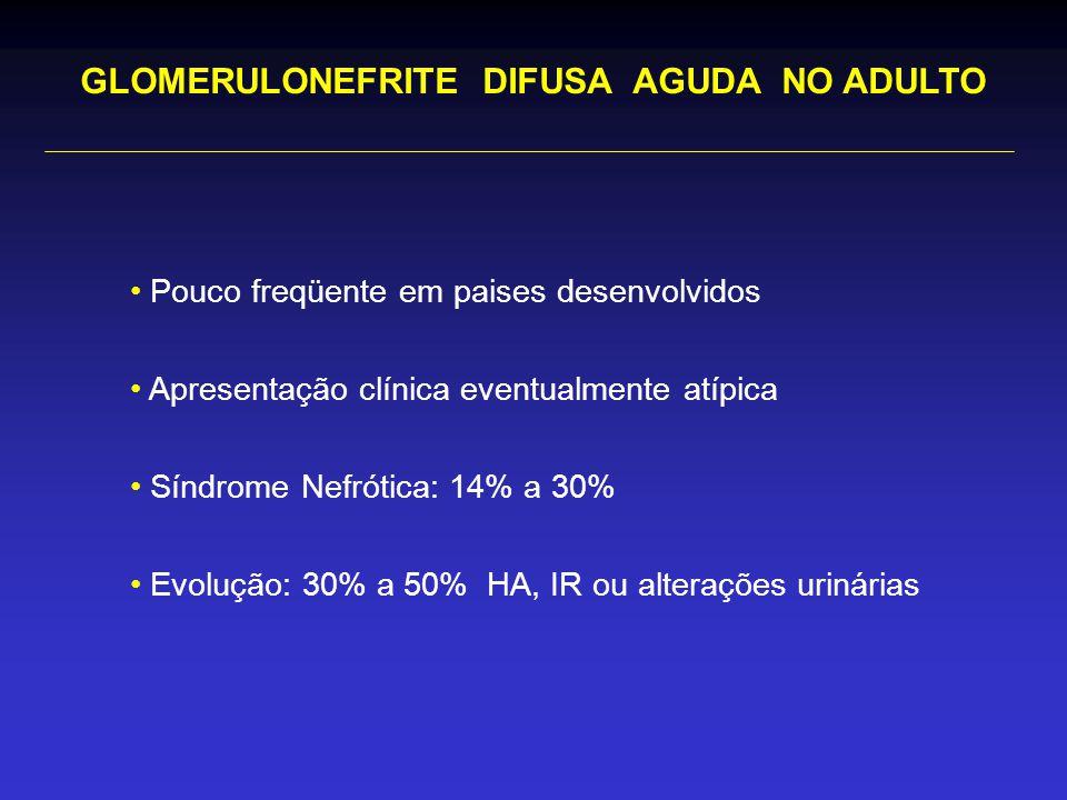 Pouco freqüente em paises desenvolvidos Apresentação clínica eventualmente atípica Síndrome Nefrótica: 14% a 30% Evolução: 30% a 50% HA, IR ou alterações urinárias GLOMERULONEFRITE DIFUSA AGUDA NO ADULTO