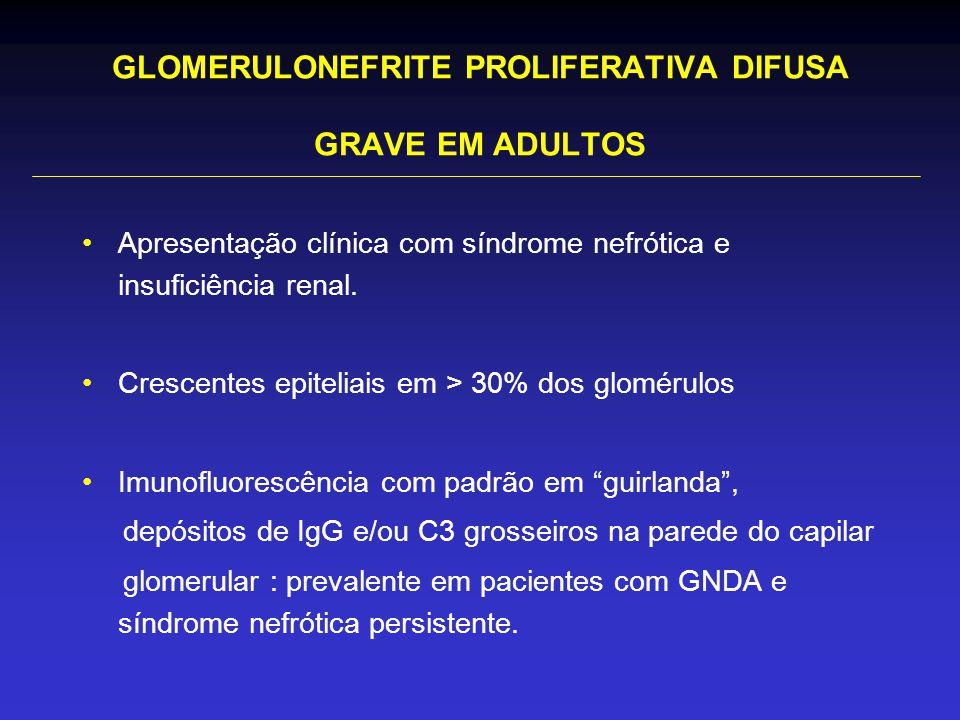 GLOMERULONEFRITE PROLIFERATIVA DIFUSA GRAVE EM ADULTOS Apresentação clínica com síndrome nefrótica e insuficiência renal.