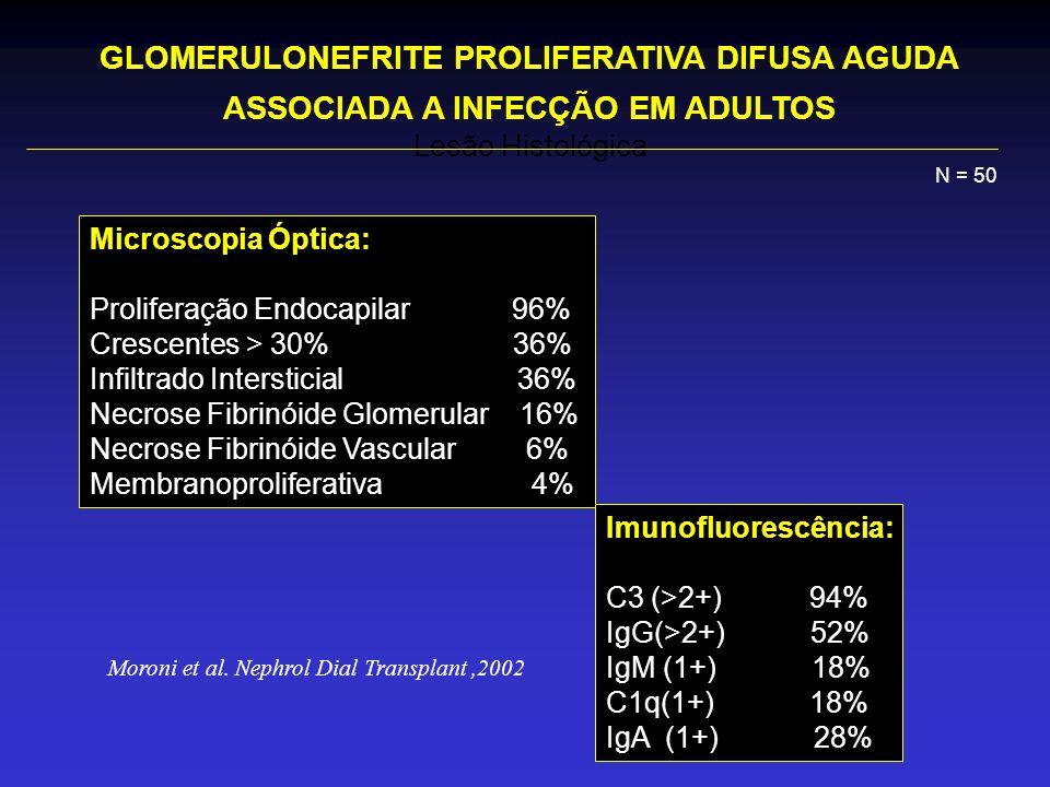 Lesão Histológica Microscopia Óptica: Proliferação Endocapilar 96% Crescentes > 30% 36% Infiltrado Intersticial 36% Necrose Fibrinóide Glomerular 16% Necrose Fibrinóide Vascular 6% Membranoproliferativa 4% Imunofluorescência: C3 (>2+) 94% IgG(>2+) 52% IgM (1+) 18% C1q(1+) 18% IgA (1+) 28% GLOMERULONEFRITE PROLIFERATIVA DIFUSA AGUDA ASSOCIADA A INFECÇÃO EM ADULTOS N = 50 Moroni et al.