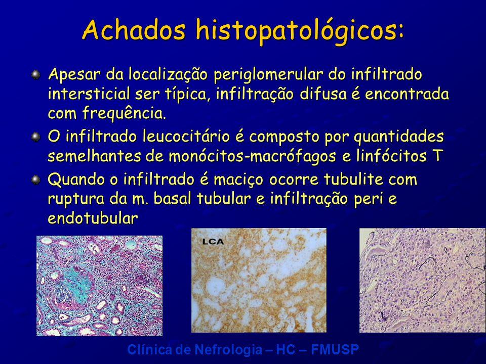 Clínica de Nefrologia – HC – FMUSP Achados histopatológicos: Apesar da localização periglomerular do infiltrado intersticial ser típica, infiltração difusa é encontrada com frequência.