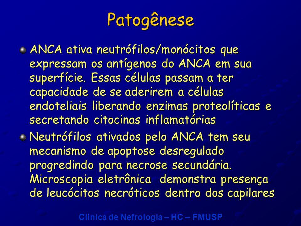 Clínica de Nefrologia – HC – FMUSP Patogênese ANCA ativa neutrófilos/monócitos que expressam os antígenos do ANCA em sua superfície.