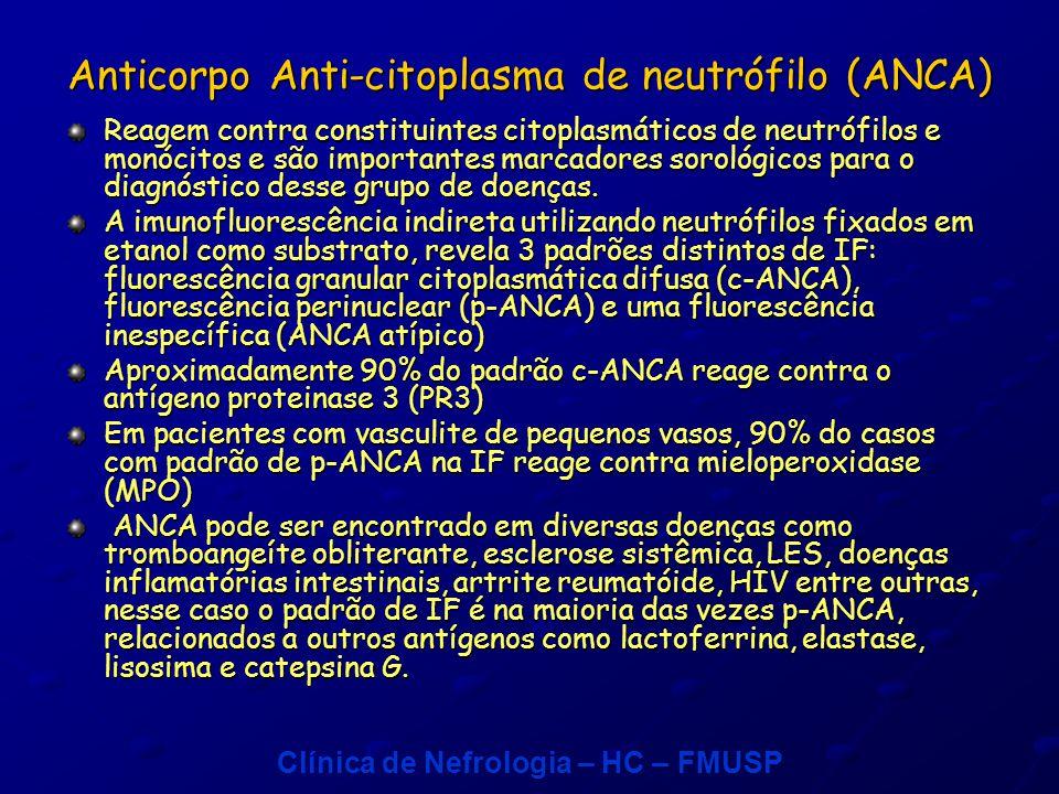 Clínica de Nefrologia – HC – FMUSP Anticorpo Anti-citoplasma de neutrófilo (ANCA) Reagem contra constituintes citoplasmáticos de neutrófilos e monócitos e são importantes marcadores sorológicos para o diagnóstico desse grupo de doenças.