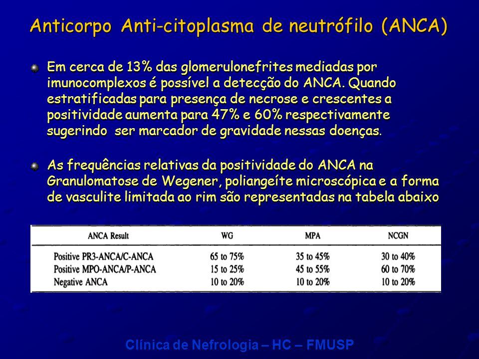 Clínica de Nefrologia – HC – FMUSP Lesão característica: gomerulonefrite necrotizante segmentar e focal pauci- imune, com graus variados de proliferação extracapilar e formação de crescentes.