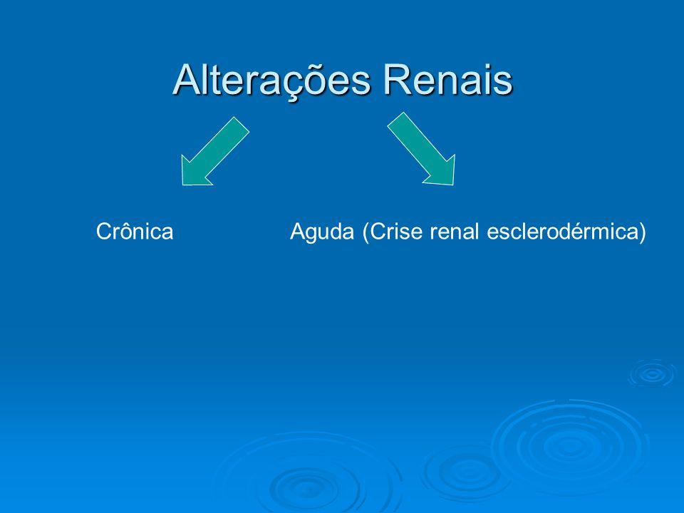 CrônicaAguda (Crise renal esclerodérmica)