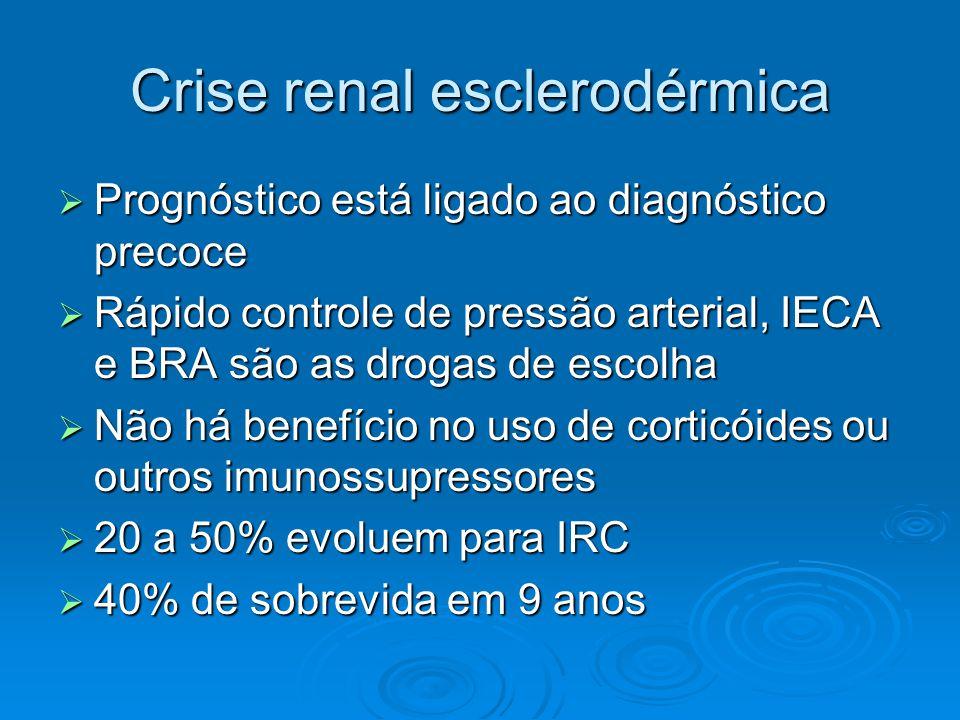 Crise renal esclerodérmica  Prognóstico está ligado ao diagnóstico precoce  Rápido controle de pressão arterial, IECA e BRA são as drogas de escolha  Não há benefício no uso de corticóides ou outros imunossupressores  20 a 50% evoluem para IRC  40% de sobrevida em 9 anos