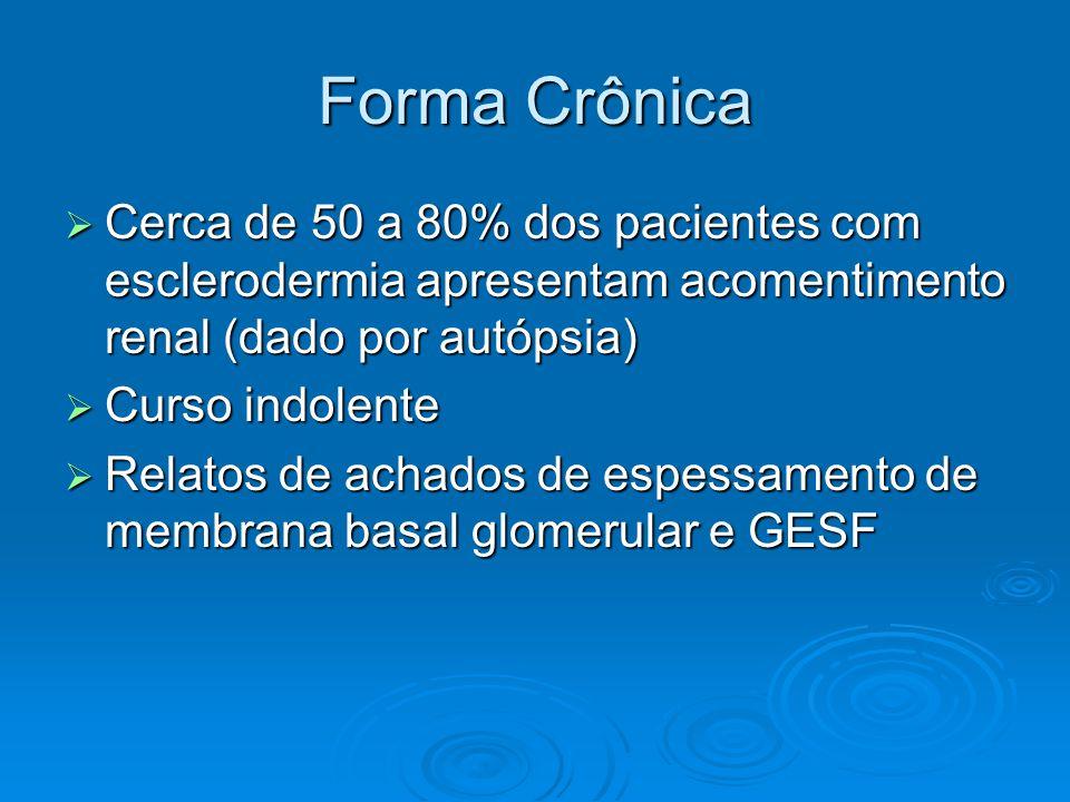 Forma Crônica  Cerca de 50 a 80% dos pacientes com esclerodermia apresentam acomentimento renal (dado por autópsia)  Curso indolente  Relatos de achados de espessamento de membrana basal glomerular e GESF
