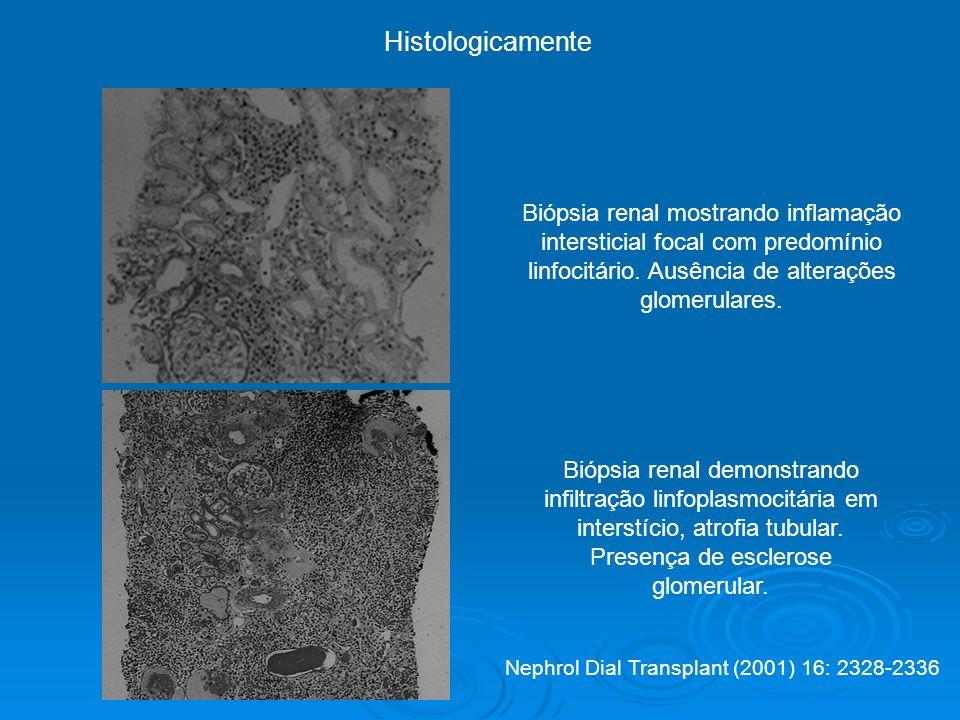 Biópsia renal mostrando inflamação intersticial focal com predomínio linfocitário.