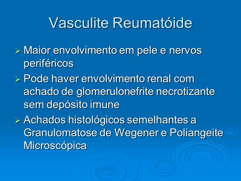 Vasculite Reumatóide  Maior envolvimento em pele e nervos periféricos  Pode haver envolvimento renal com achado de glomerulonefrite necrotizante sem depósito imune  Achados histológicos semelhantes a Granulomatose de Wegener e Poliangeite Microscópica