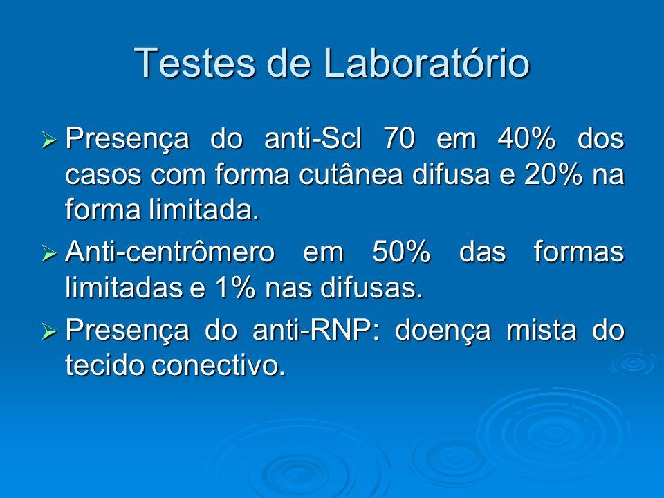 Testes de Laboratório  Presença do anti-Scl 70 em 40% dos casos com forma cutânea difusa e 20% na forma limitada.
