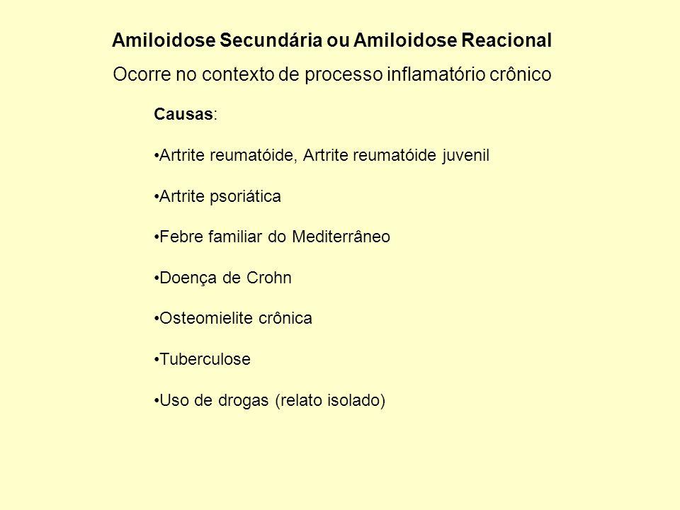 Amiloidose Secundária ou Amiloidose Reacional Ocorre no contexto de processo inflamatório crônico Causas: Artrite reumatóide, Artrite reumatóide juven