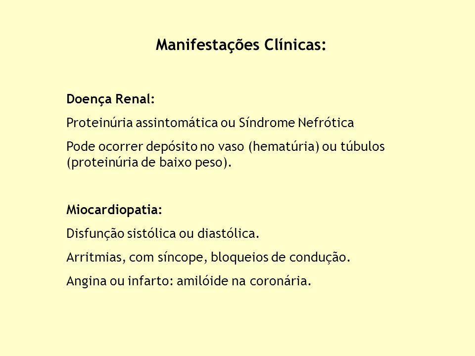 Doença Renal: Proteinúria assintomática ou Síndrome Nefrótica Pode ocorrer depósito no vaso (hematúria) ou túbulos (proteinúria de baixo peso). Miocar