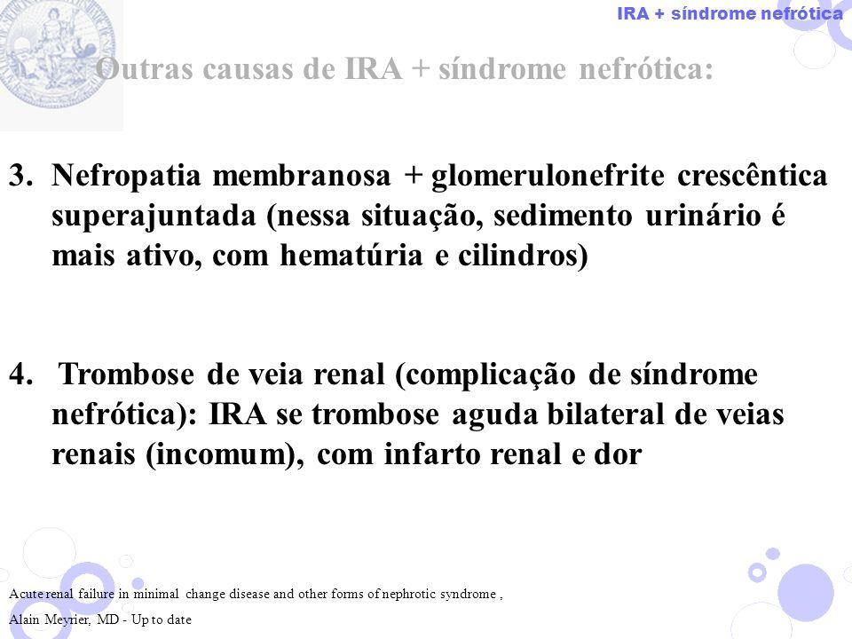 3.Nefropatia membranosa + glomerulonefrite crescêntica superajuntada (nessa situação, sedimento urinário é mais ativo, com hematúria e cilindros) 4. T