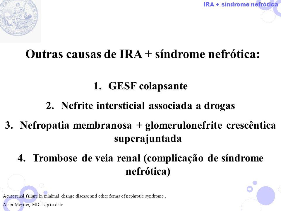 Outras causas de IRA + síndrome nefrótica: 1.GESF colapsante 2.Nefrite intersticial associada a drogas 3.Nefropatia membranosa + glomerulonefrite cres