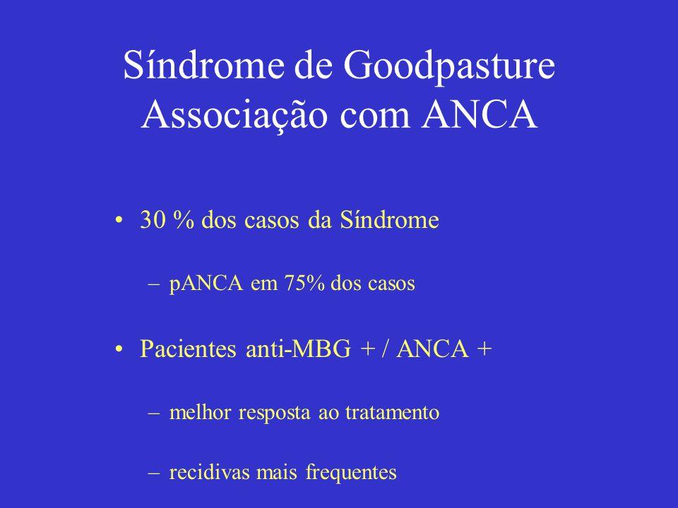 Síndrome de Goodpasture Associação com ANCA 30 % dos casos da Síndrome –pANCA em 75% dos casos Pacientes anti-MBG + / ANCA + –melhor resposta ao trata