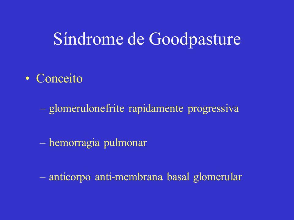 Síndrome de Goodpasture Conceito –glomerulonefrite rapidamente progressiva –hemorragia pulmonar –anticorpo anti-membrana basal glomerular